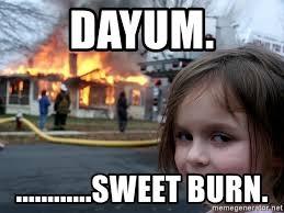 burn2.jpg